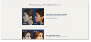 Stallworth Rhinoplasty Landing Page Before & After