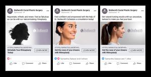Stallworth Rhinoplasty Facebook Ads